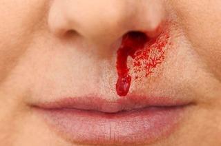 Was tun bei Nasenbluten: Mythen und gute Tipps