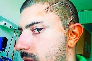 Wie das Internet half, einen Hirntumor zu besiegen